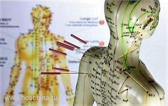 Лечение эпилепсии в Китае| лечение эпилепсии в китайском военном госпитале |лечение эпилепсии в Даляне